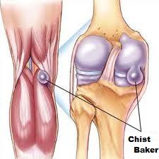 umflarea în partea din spate a genunchiului