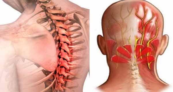 articulația doare timp de o lună