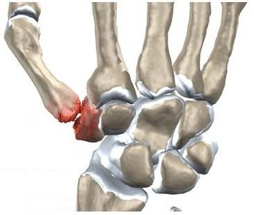 inflamația articulației mâinii stângi