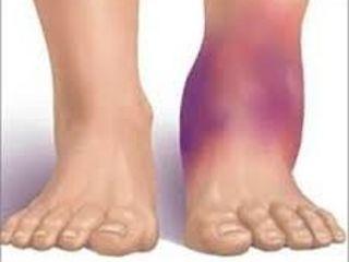 dureri articulare la brațele și picioarele exerciții