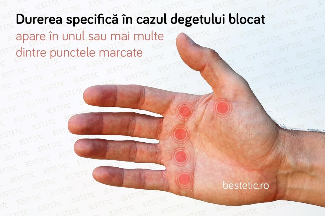 Poliartrita reumatoida   championsforlife.ro