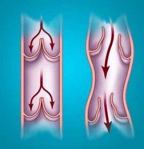 varicoză și osteochondroza
