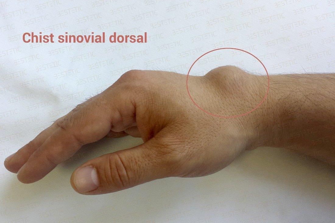 inflamația încheieturii mâinii