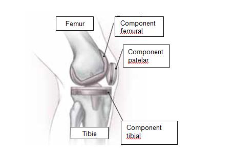 cele mai bune metode pentru tratarea artrozei genunchiului