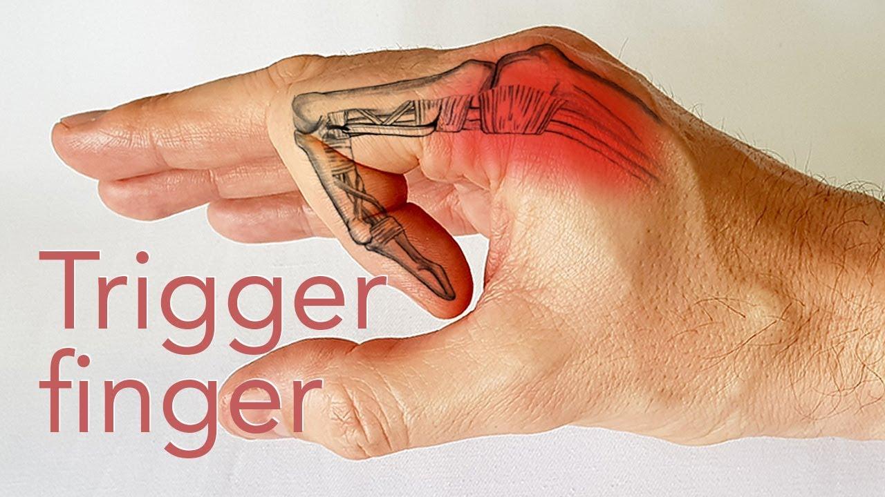 De ce venele de mână se pot umfla? - Simptome