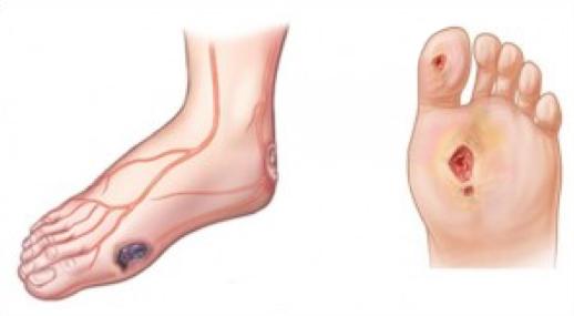 tratamentul articulațiilor diabetice periartrita articulațiilor cotului cum să tratezi
