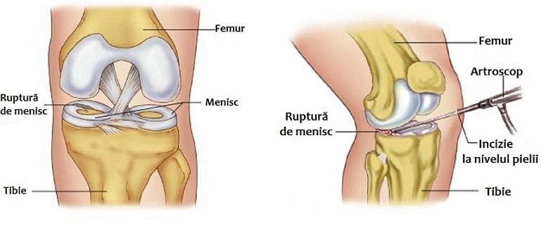 poliartrita reumatică a tratamentului articulațiilor