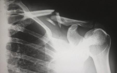 Stres Dureri Articulare - Stres Dureri Articulare - Sub dureri articulare de stres