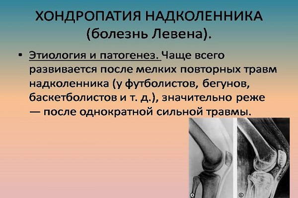 artroza articulației genunchiului prognostic de 1 grad