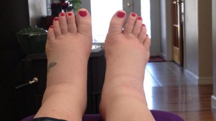 umflarea picioarelor gleznelor piciorului cum pot ameliora durerea acută în articulația umărului