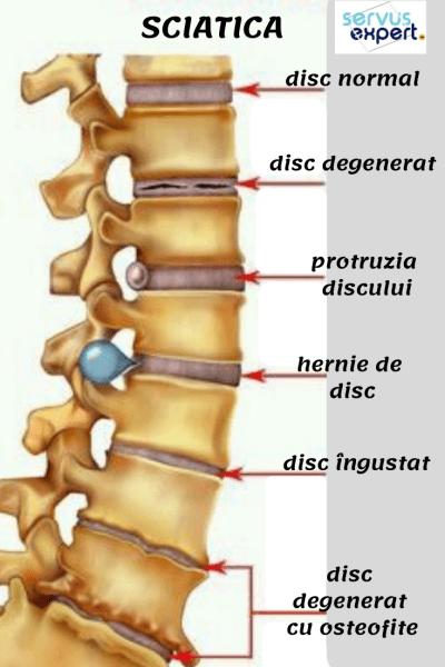Unde este tratată coloana vertebrală și articulațiile, Reumatologia si bolile reumatice