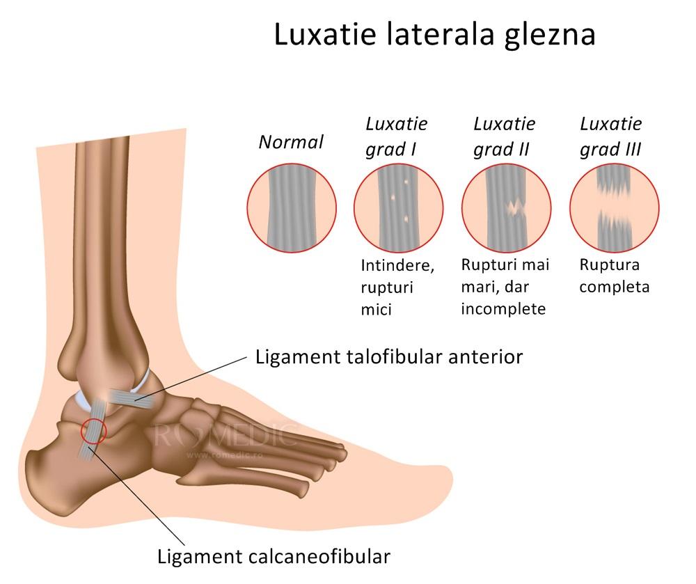 Refacerea țesutului cartilaginos al articulației gleznei. Defectul de cartilaj articular - Kinetic