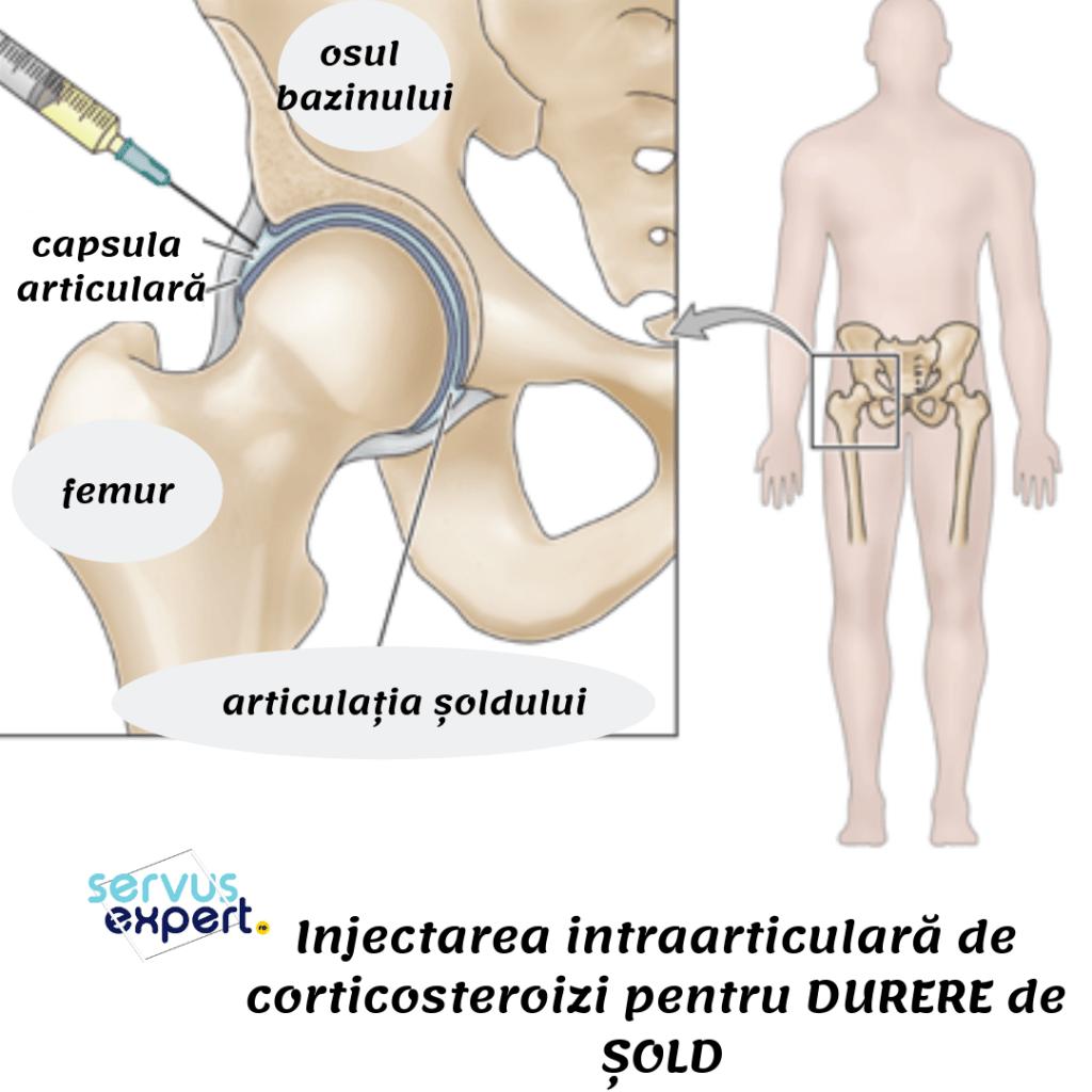 tratarea leziunilor ligamentului cruciat al genunchiului unguent pentru articulații 911