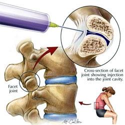 tratament pentru artroza din vanga