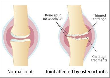 Artroza cu picioarele plate a articulației gleznei