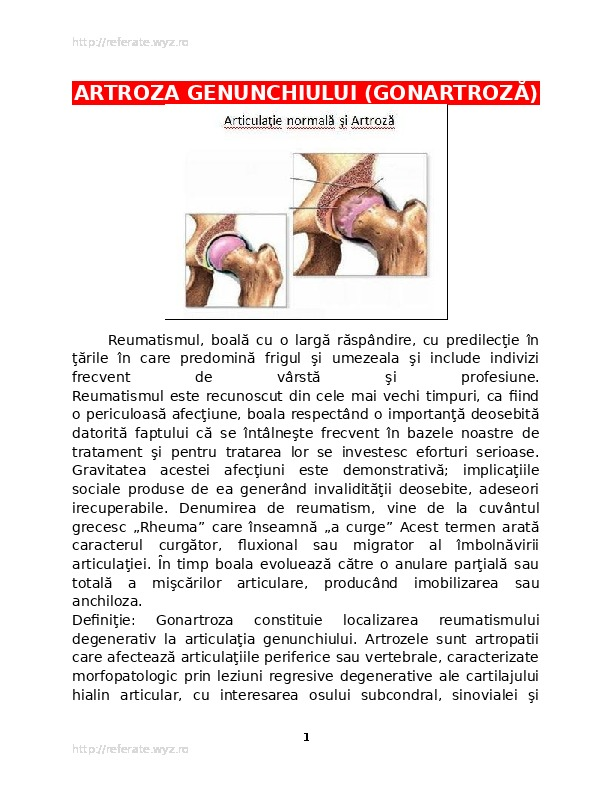 câte etape de artroză a genunchiului