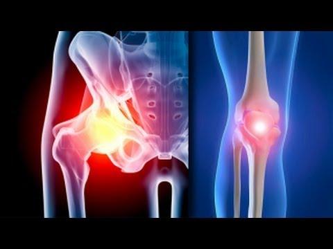 artroza acută a genunchiului ce vindecă o articulație de șold