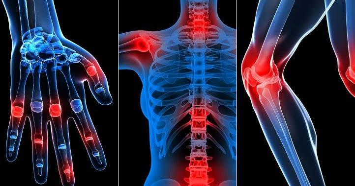 medicamente pentru tratamentul rupturii ligamentului gleznei ce provoacă artroza articulațiilor genunchiului