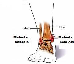 de ce se umflă articulația genunchiului tratamentul artritei purulente a articulației umărului