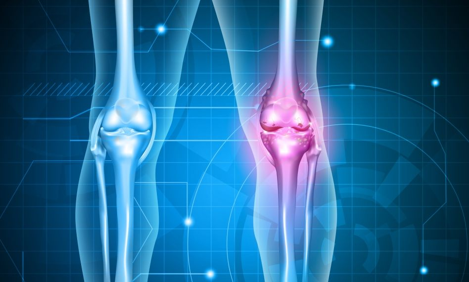 Artroza deformantă a medicamentelor pentru tratamentul genunchiului