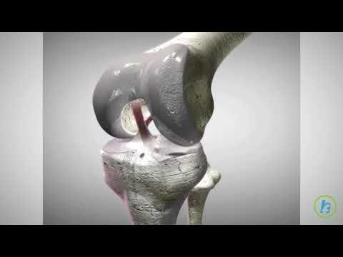 fisura articulației genunchiului artroză proastă pentru a trata a
