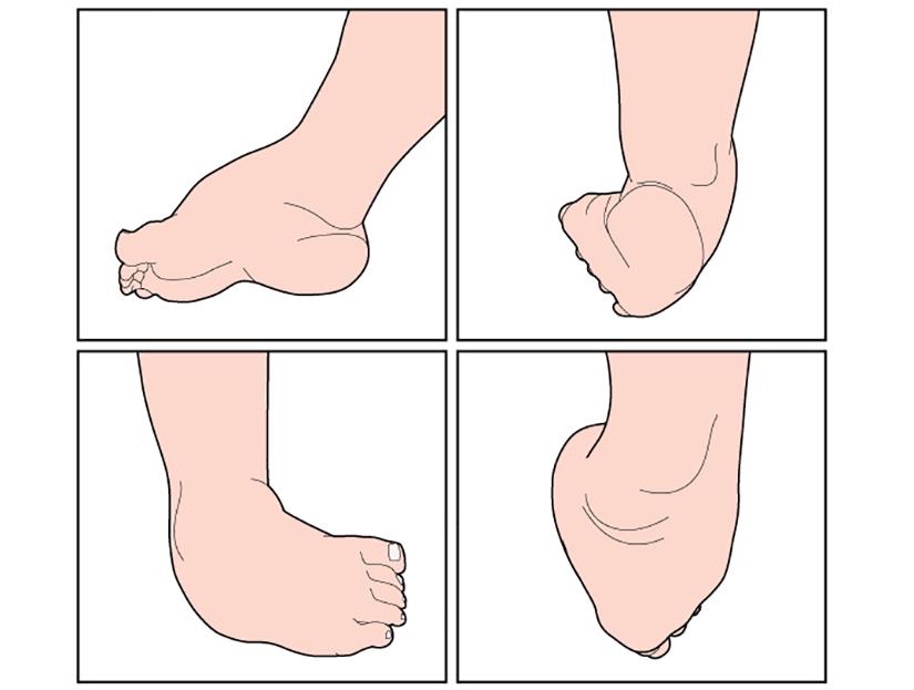 durere în articulațiile picioarelor la copii Am 30 de ani doare articulațiile