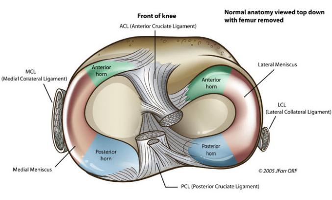 menisc și leziune articulară