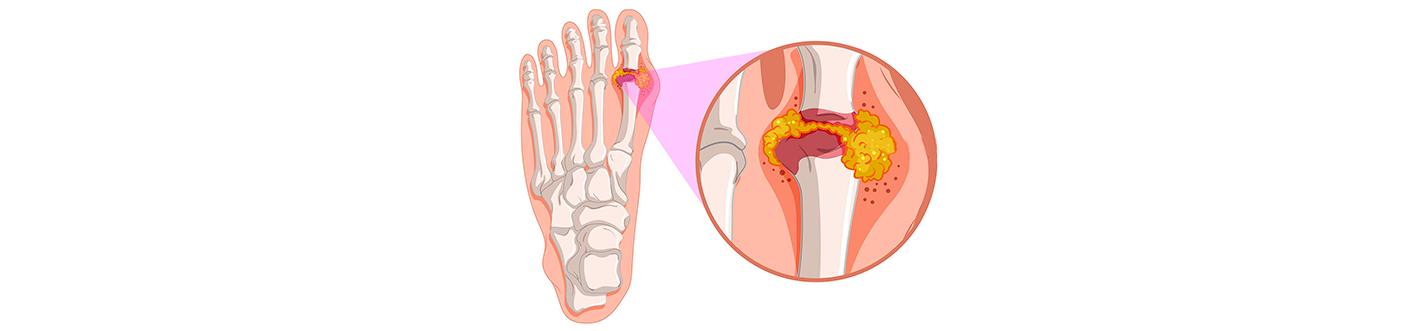 dureri musculare în apropierea articulațiilor durere sub articulațiile genunchiului