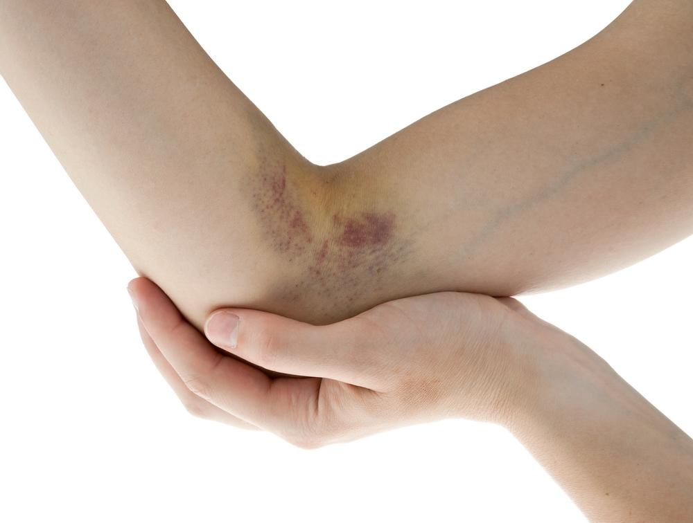 umflături și vânătăi pe articulația brațului