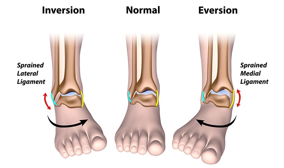 ligament dureros la gleznă tratamentul artritei artrozei genunchiului