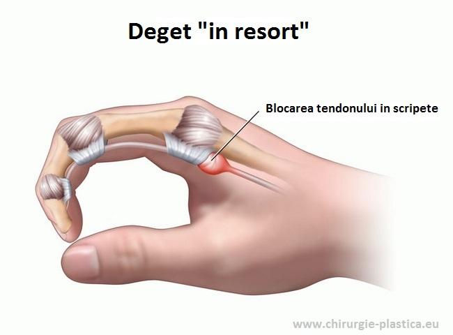 articulația mică a degetului doare după lovire