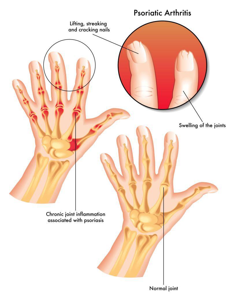 unde este tratată artrita psoriazică