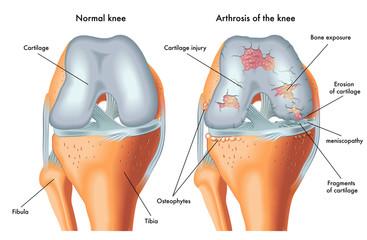 artroza zdrobește toate articulațiile