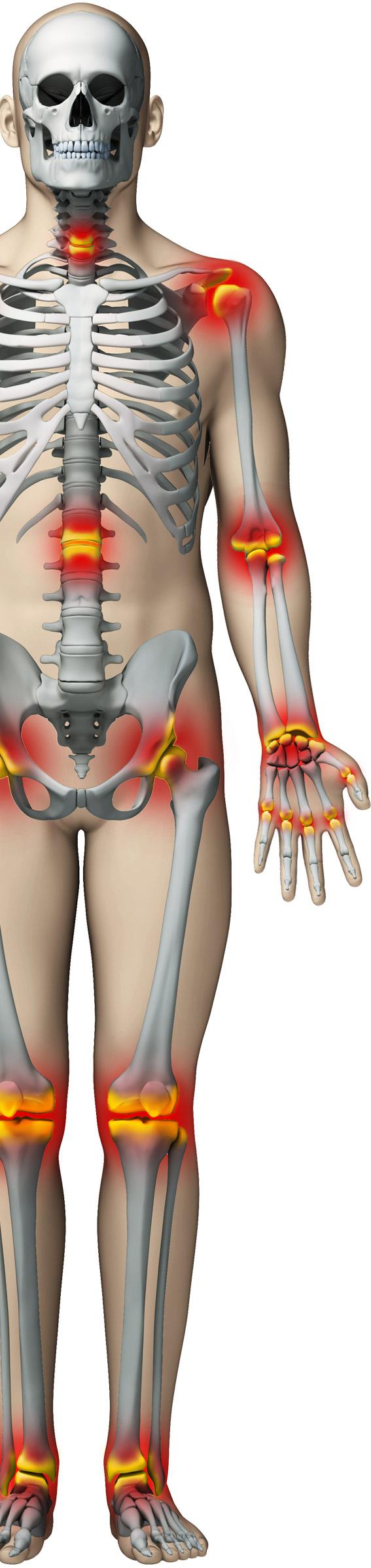 Când scârţâie articulaţiile Scârțâie în articulațiile degetelor fără durere