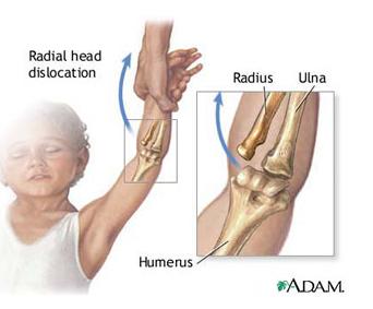 Artroza articulației cotului cu 2 grade.