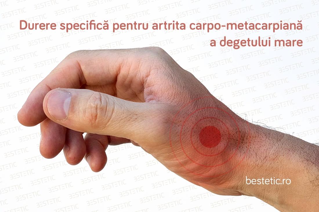 dureri la încheietura mâinii cu reumatism Medicina cu artroză
