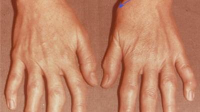 dacă durere în articulația degetului mare