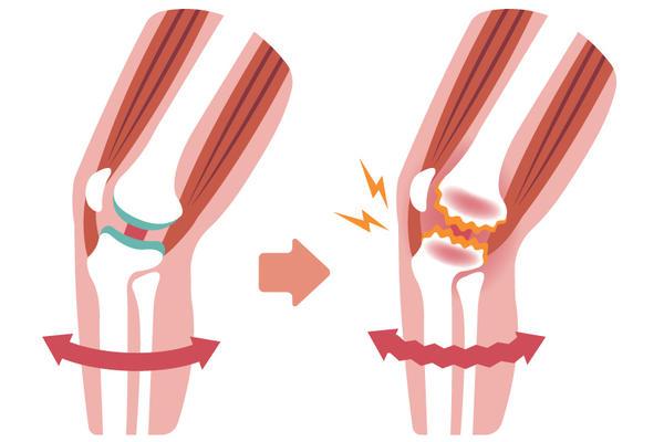comentarii de tratament articular al genunchiului de șoarece