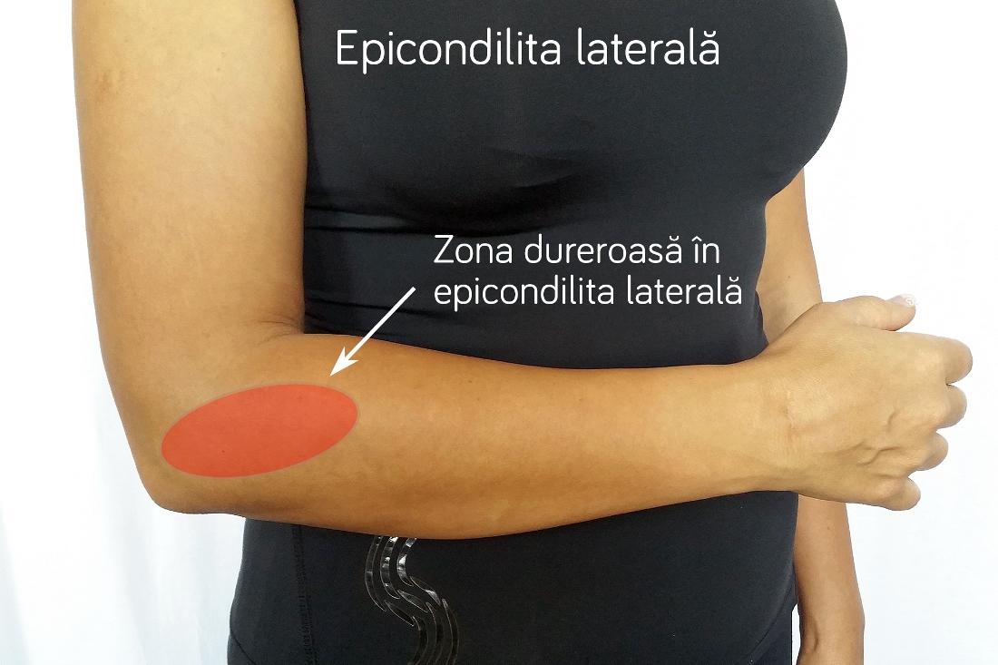 injecții pentru durere în articulația cotului dureri de durere în articulația piciorului