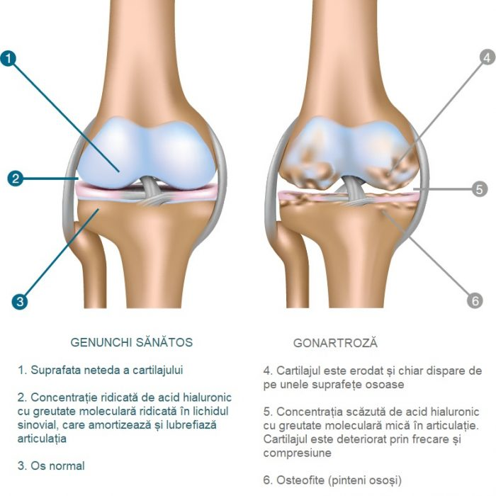 crește pe articulația genunchiului cu artroză