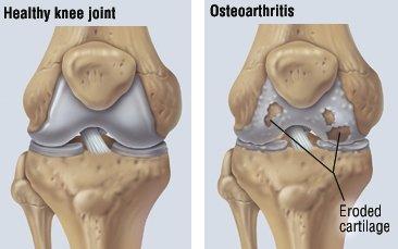boala osteoartrozei genunchiului