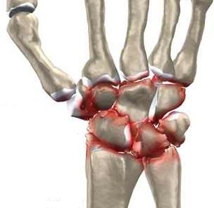 Dacă articulația încheietura mâinii doare
