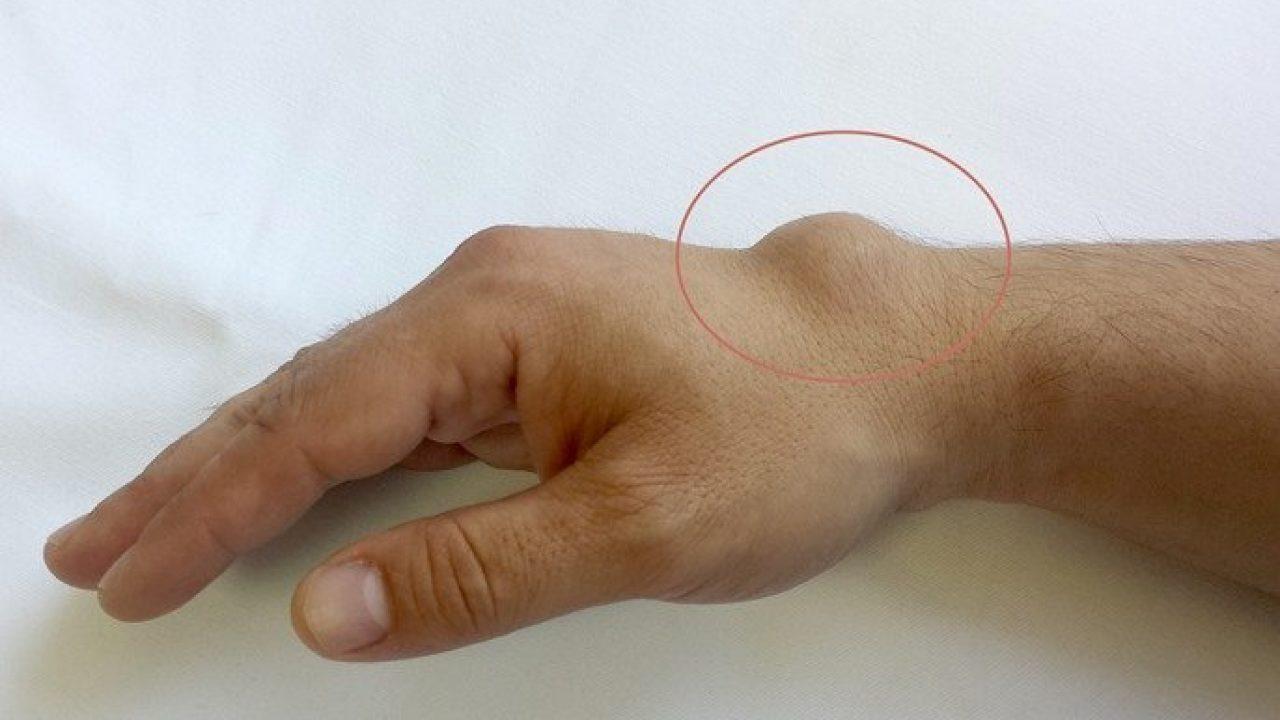 degetul umflat pe mână doare articulația