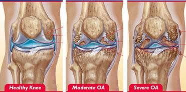 cum este diagnosticată artroza genunchiului