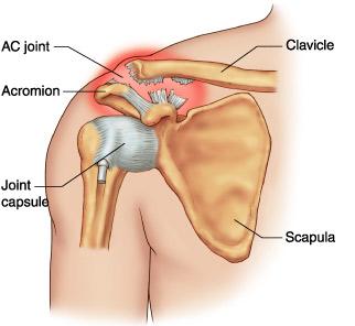 Ruperea parțială a ligamentelor tratamentului articulației umărului.