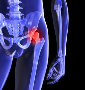 tratamentul umflăturilor pe articulația piciorului cinci sfaturi pentru cei care au dureri articulare