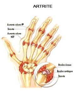 cod artrita articulara