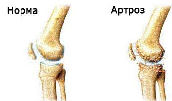 cum se dezvoltă artroza genunchiului