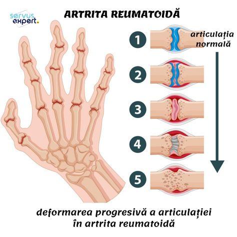 ce medicamente să bea atunci când articulațiile doare artroza și tratamentul acestora