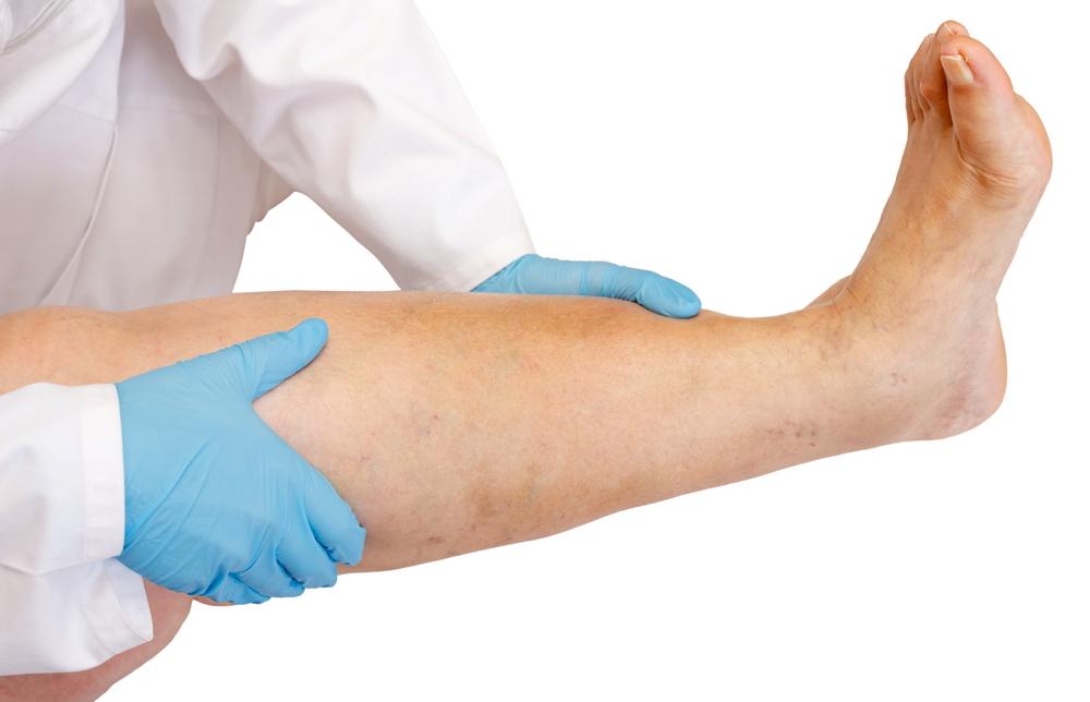 kinesiotape în artroza articulației gleznei